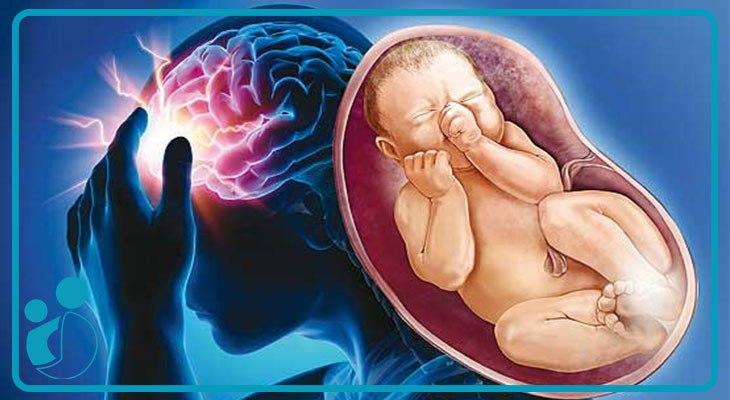 سردرد در دوران بارداری و درمانهای ایمن برای آن
