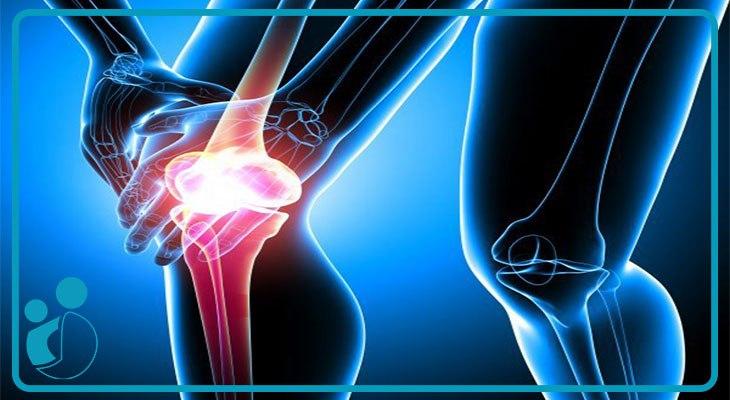 درمان آرتروز (استئوآرتریت مفاصل) در کلینیک درد بیمارستان مریم