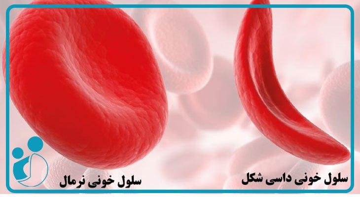 کمخونی داسی شکل در بارداری