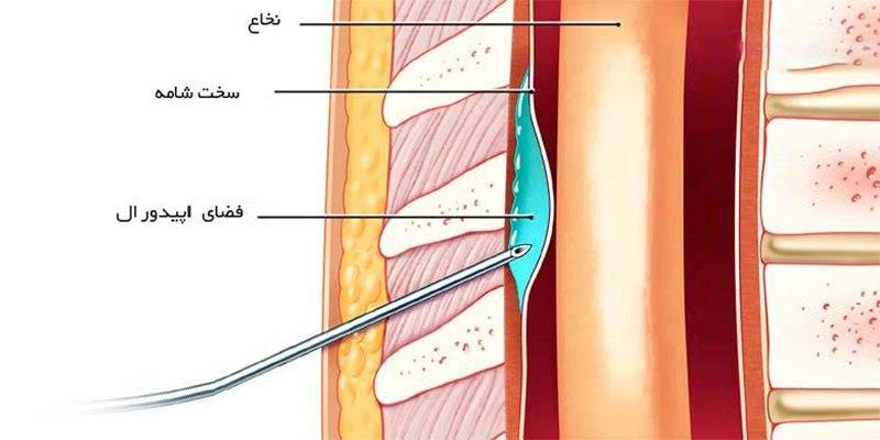 تزریق اپیدورال زایمان طبیعی بدون درد