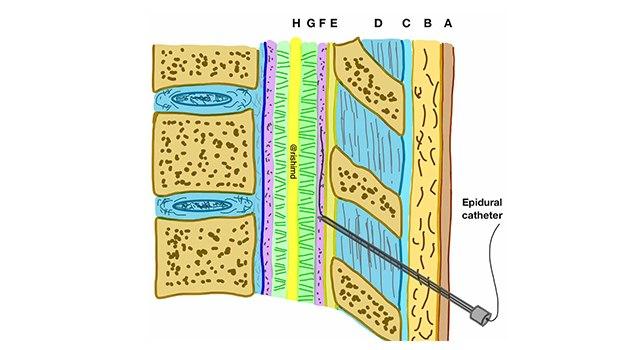 سردردهای پس از بیحسی نخاعی (اسپاینال)