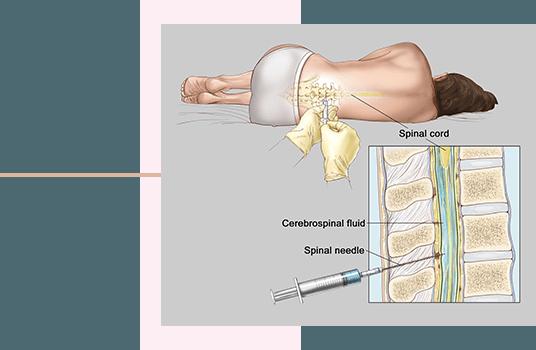 زایمان طبیعی بدون درد