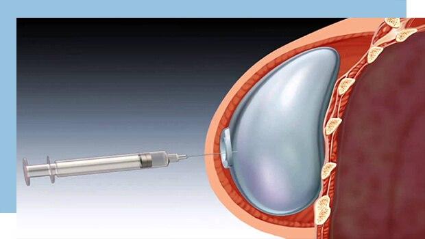 جراحی بازسازی پستان چگونه است؟