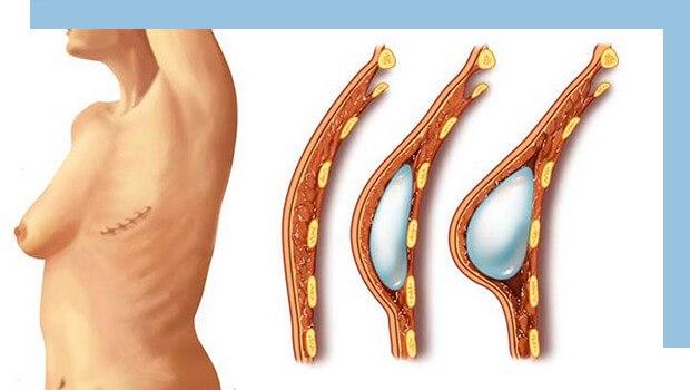 جراحی بازسازی پستان