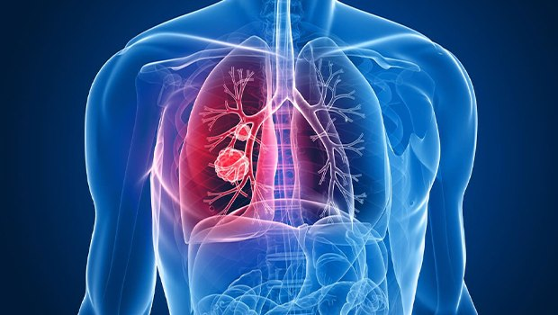 عوارض ناشی از سرطان ریه