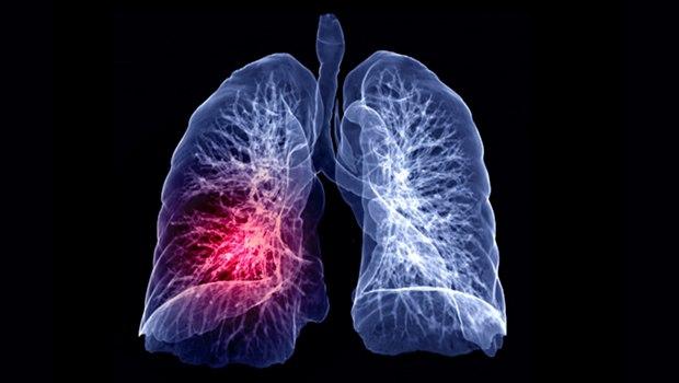 علت ایجاد سرطان ریه